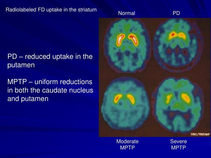 Radiolabeled FD uptake in the striatum