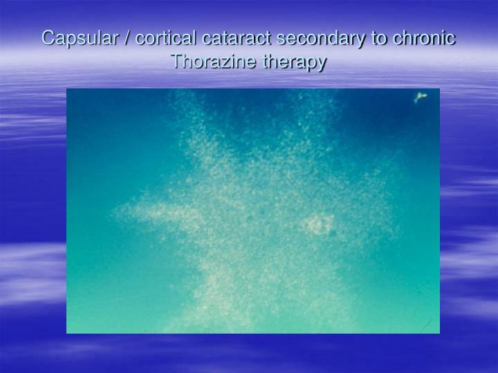 Capsular / cortical cataract secondary to chronic Thorazine therapy