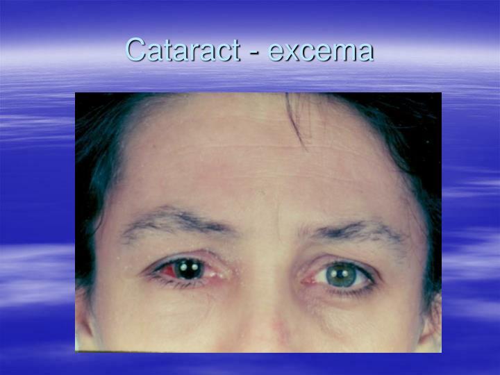 Cataract - excema