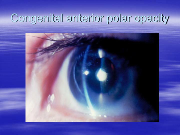 Congenital anterior polar opacity