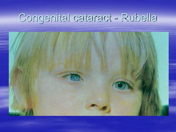 Congenital cataract - Rubella