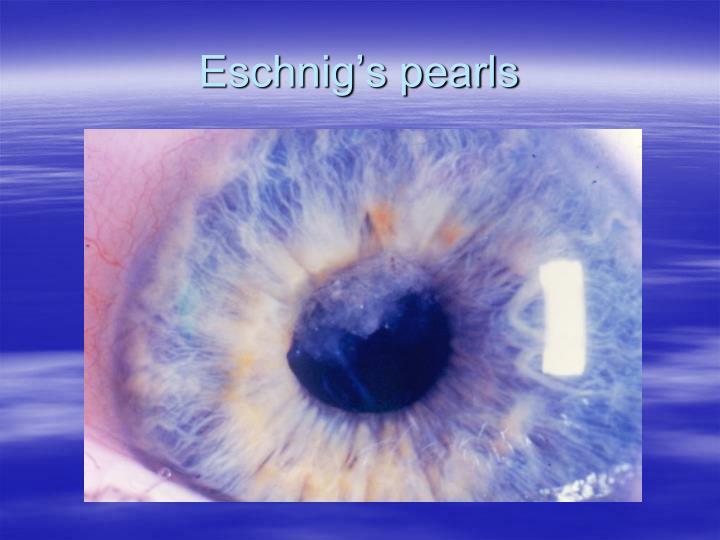 Eschnig's pearls