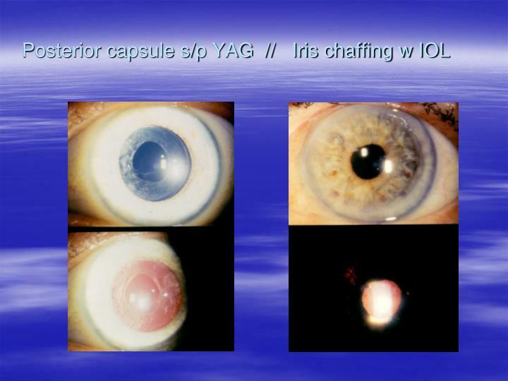 Posterior capsule s/p YAG  //   Iris chaffing w IOL