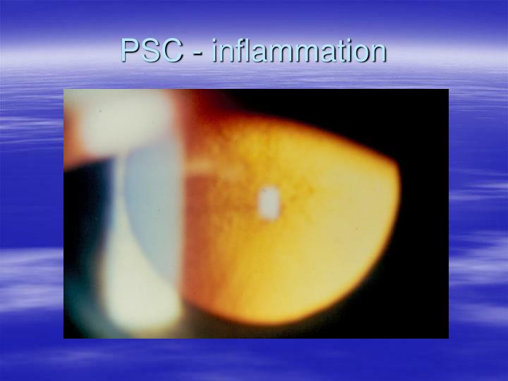 PSC - inflammation