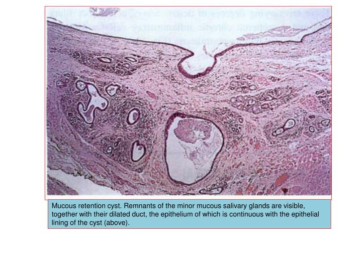 Mucous retention cyst. Remnants of the minor mucous salivary glands are visible, together with their dilated duct, the epithelium of which is continuous with the epithelial lining of the cyst (above).