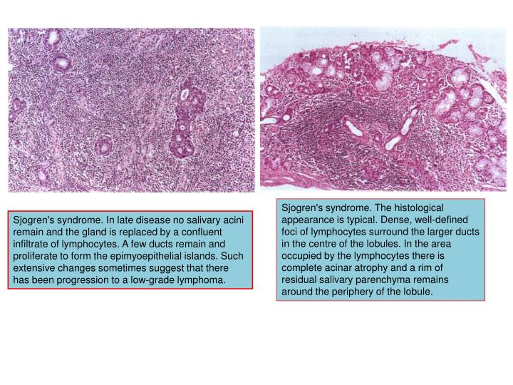 Sjogren's syndrome. The histological appearance is typical. Dense, well-defined foci of lymphocytes surround the larger ducts in the centre of the lobules. In the area occupied by the lymphocytes there is complete acinar atrophy and a rim of residual salivary parenchyma remains around the periphery of the lobule.