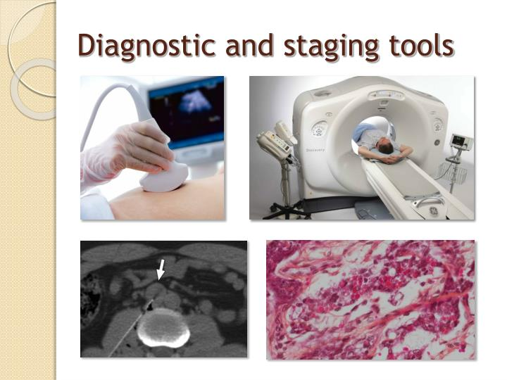 Diagnostic and staging tools
