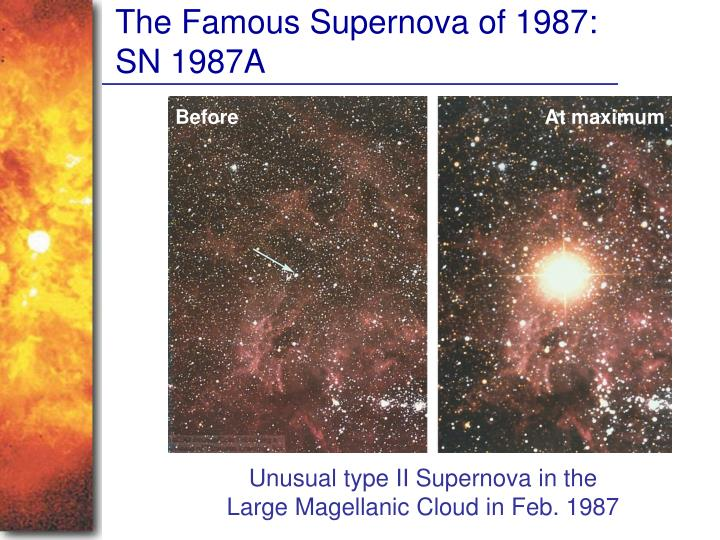 The Famous Supernova of 1987: