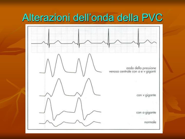 Alterazioni dell'onda della PVC