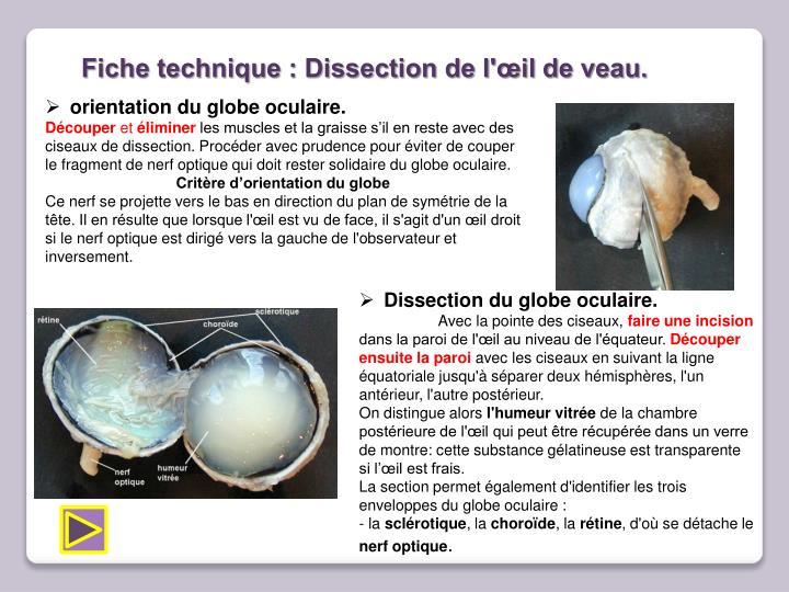 Ppt tp1 le cristallin et certaines anomalies de la vision powerpoint presentation id 4511278 - Couche du globe oculaire ...