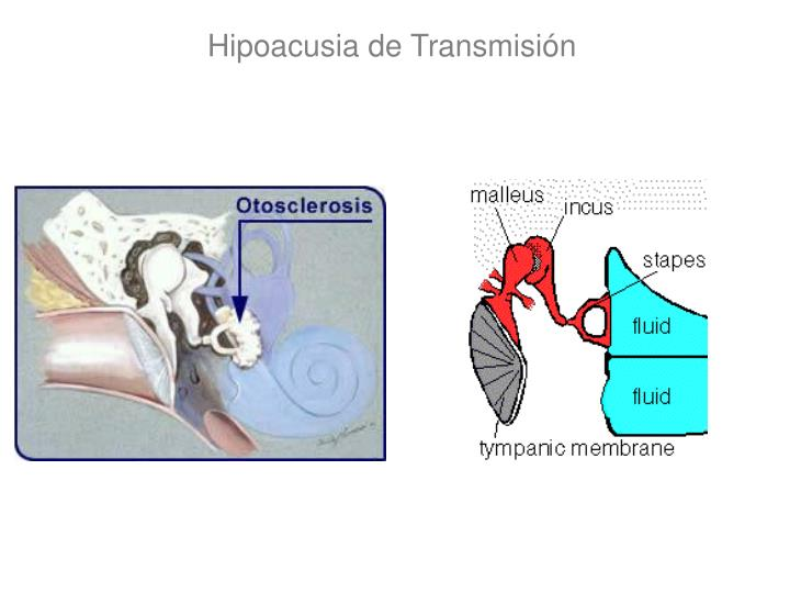 Hipoacusia de Transmisión