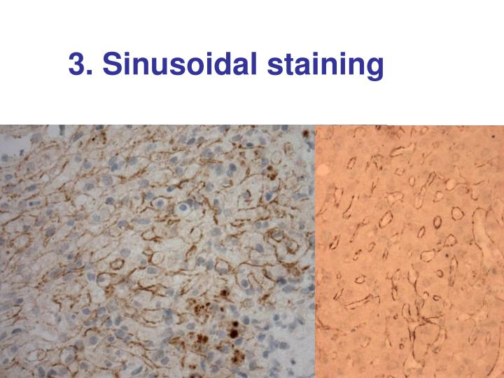 3. Sinusoidal staining