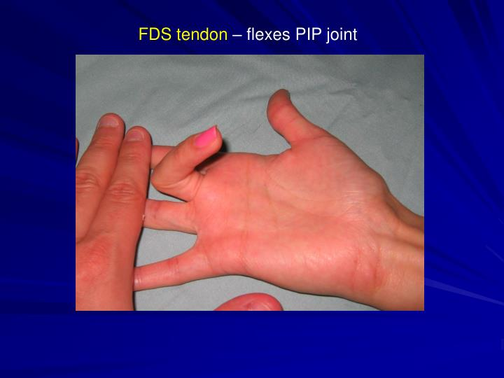 FDS tendon