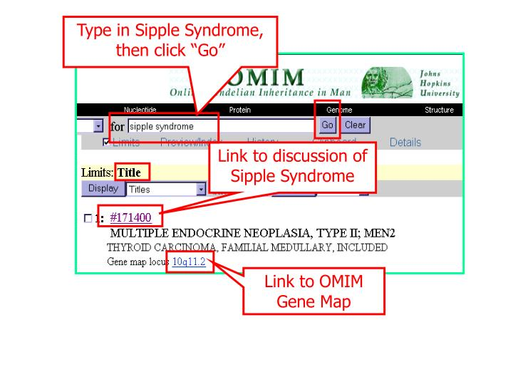 "Type in Sipple Syndrome, then click ""Go"""