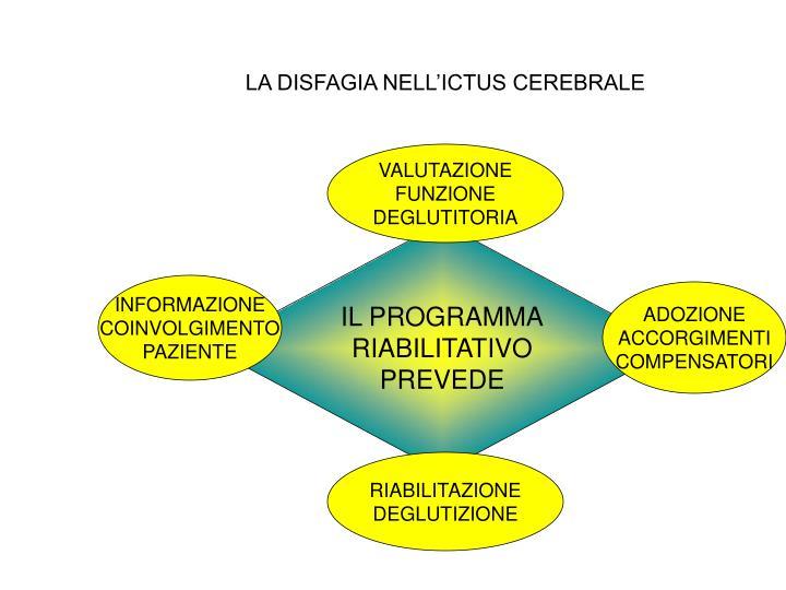 LA DISFAGIA NELL'ICTUS CEREBRALE