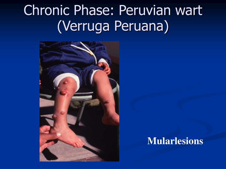 Chronic Phase: Peruvian wart (Verruga Peruana)
