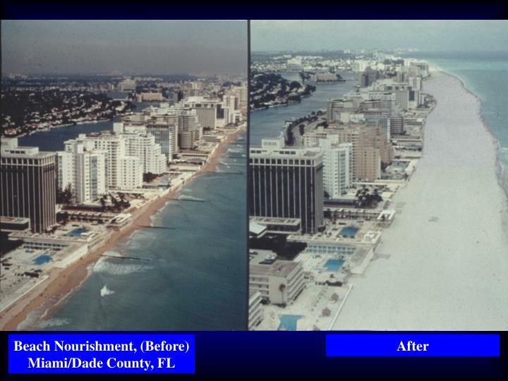 Beach Nourishment, (Before) Miami/Dade County, FL