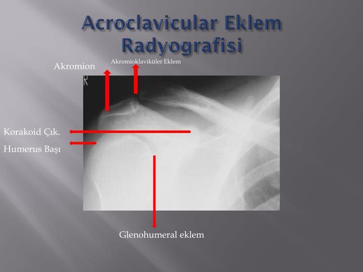 Acroclavicular