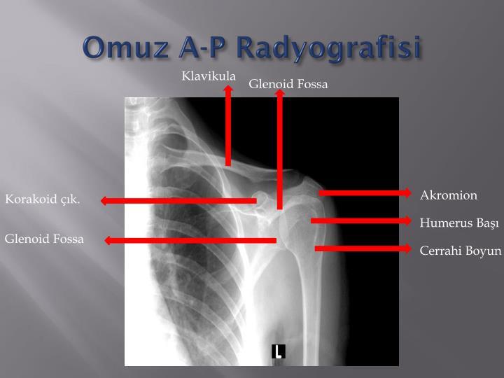 Omuz A-P Radyografisi