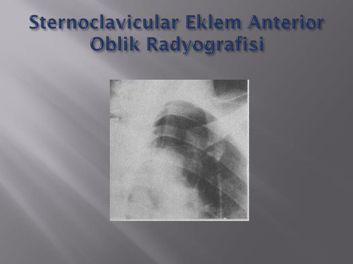 Sternoclavicular