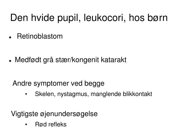 Den hvide pupil, leukocori, hos børn