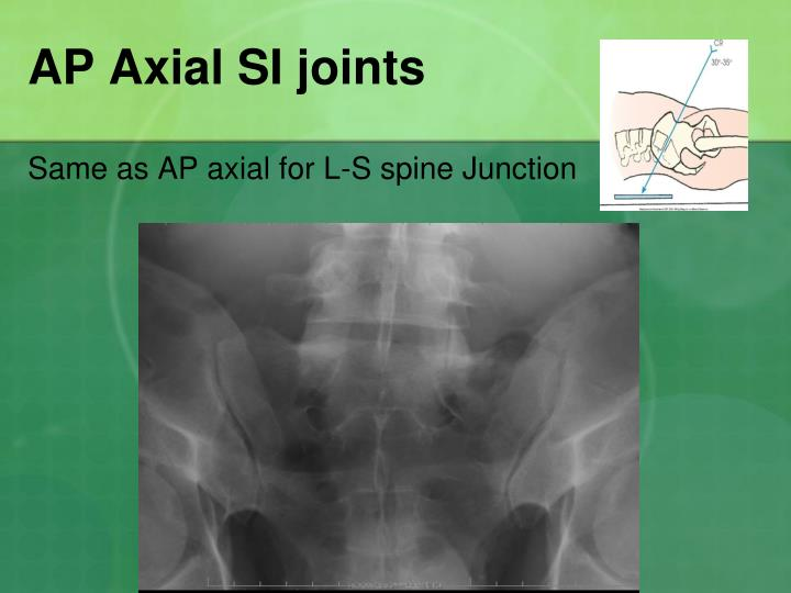 AP Axial SI joints