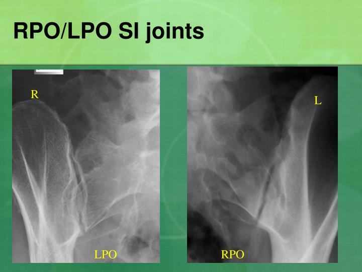 RPO/LPO SI joints