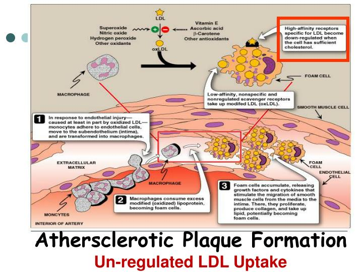 Athersclerotic Plaque Formation