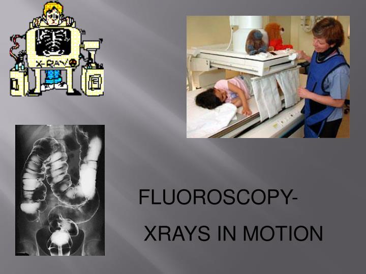 FLUOROSCOPY-