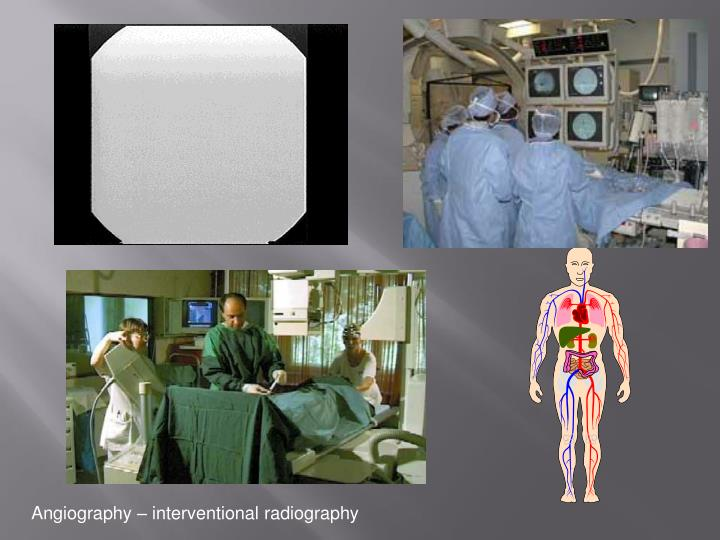 Angiography – interventional radiography