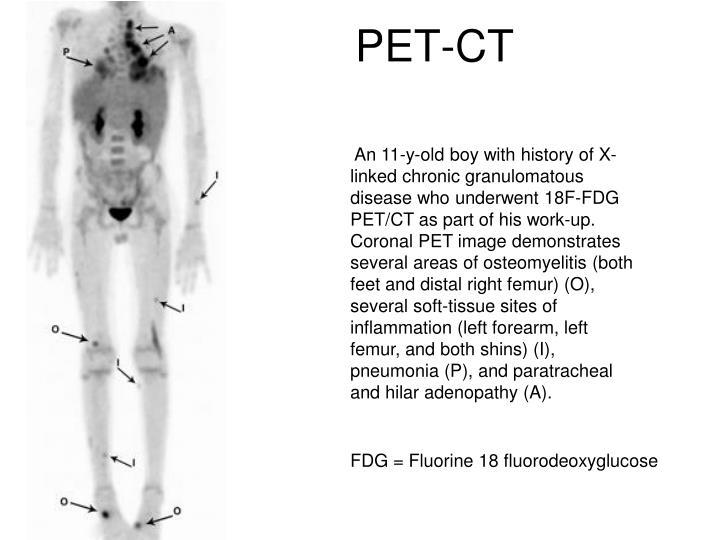 PET-CT