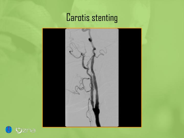 Carotis stenting