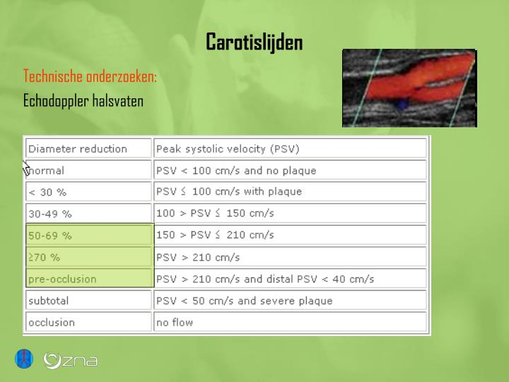 Carotislijden