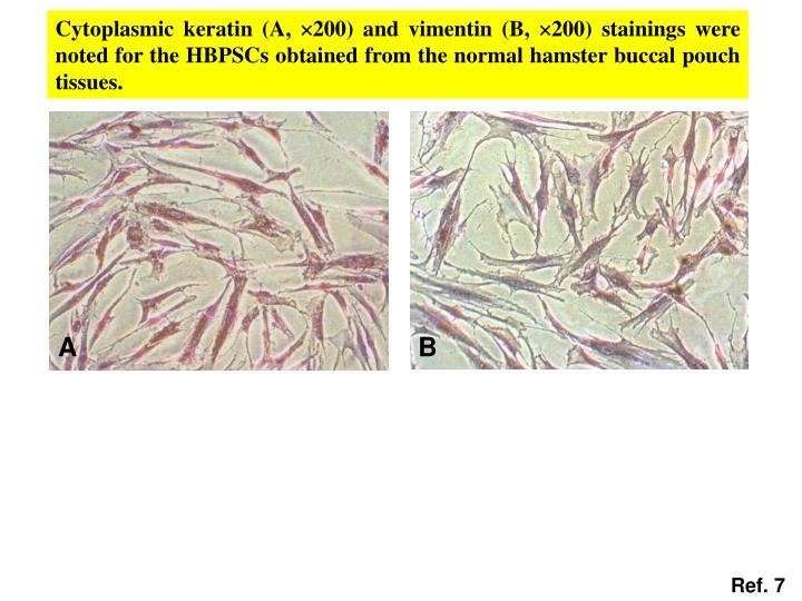 Cytoplasmic keratin (A,
