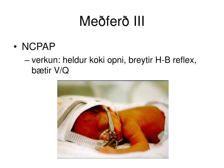 Meðferð III