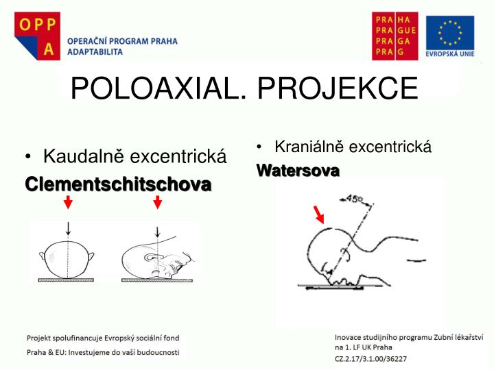 POLOAXIAL. PROJEKCE