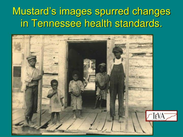 Mustard's images spurred changes in Tennessee health standards.