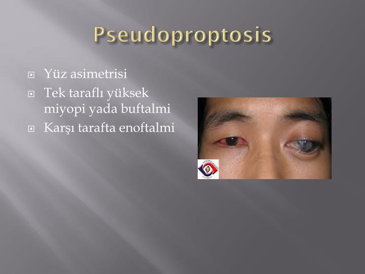 Pseudoproptosis