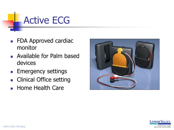 Active ECG