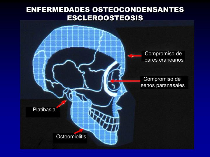 ENFERMEDADES OSTEOCONDENSANTES