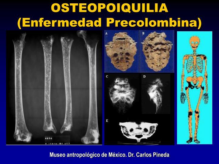 OSTEOPOIQUILIA