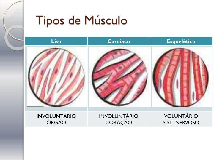 Tipos de Músculo