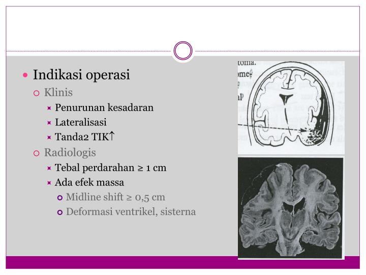 Indikasi operasi