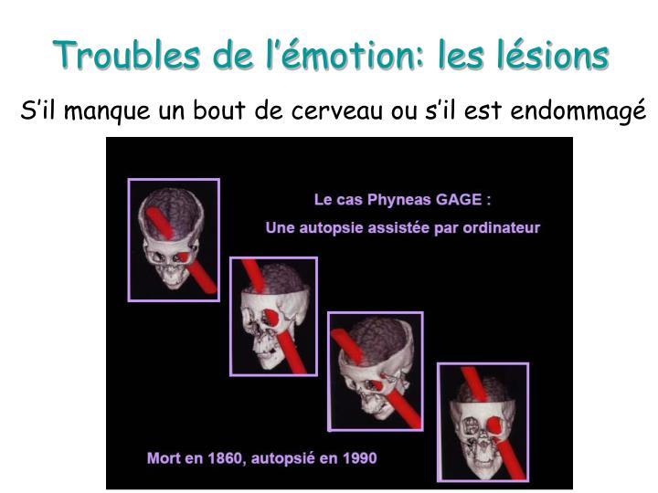 Troubles de l'émotion: les lésions