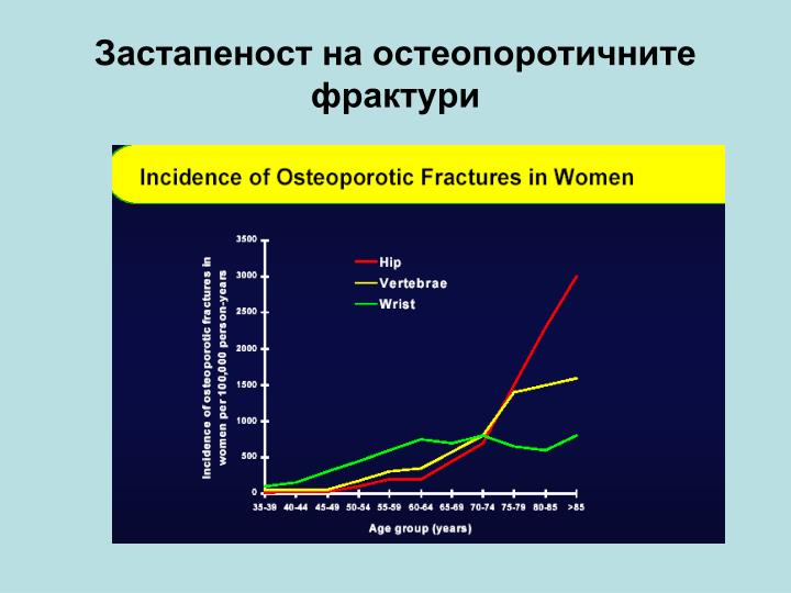 Застапеност на остеопоротичните фрактури