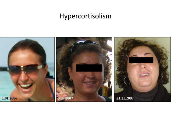 Hypercortisolism