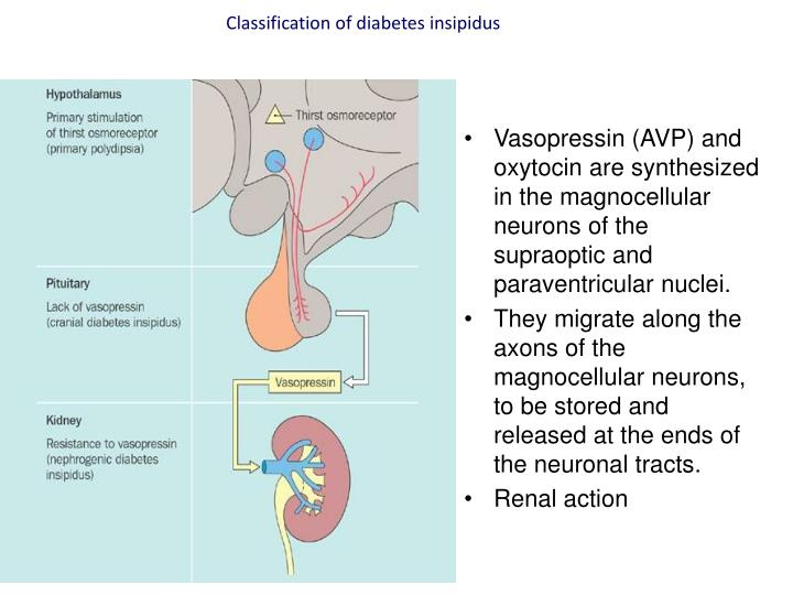 Classification of diabetes insipidus