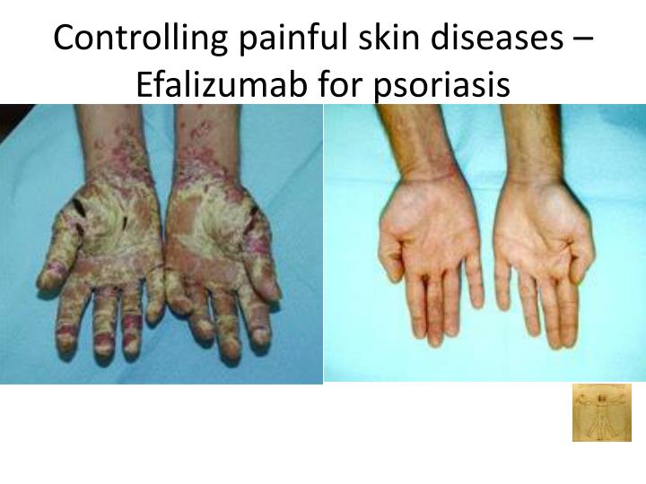 Controlling painful skin diseases –