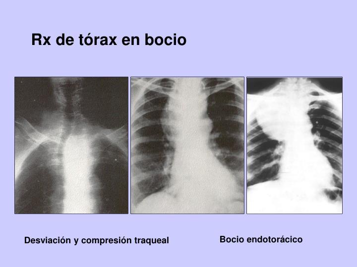 Rx de tórax en bocio