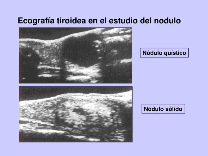 Ecografía tiroidea en el estudio del nodulo